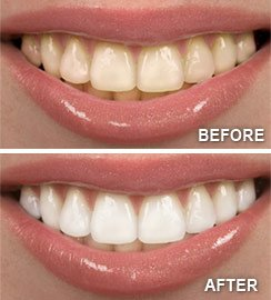 Teeth Whitening Menlo Park CA | Dentist Redwood City CA