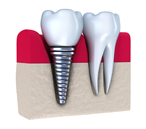 Dental Implants Menlo Park CA